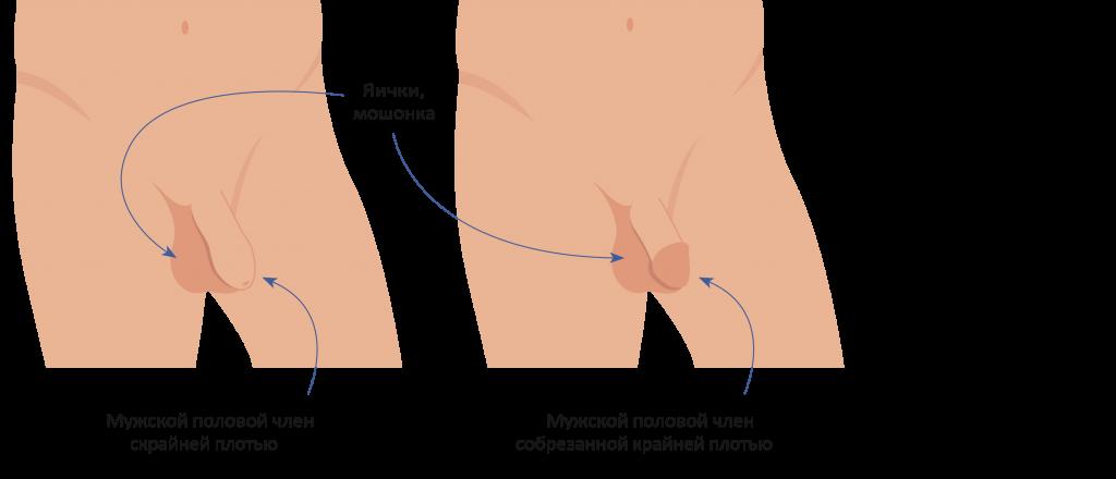 Наружние половые органы